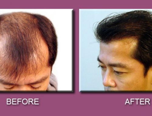 Best hair transplants: interesting results