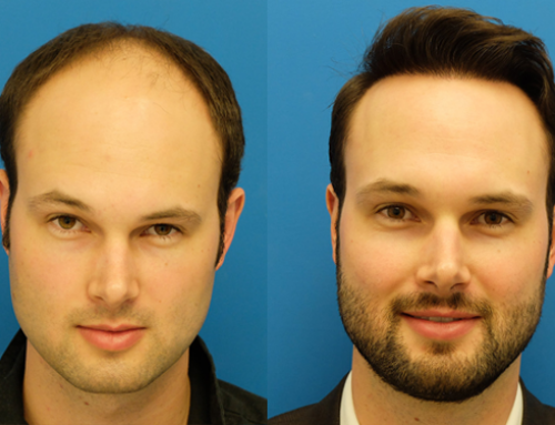 Step by step instructions to Increase Hair Growth Rate after a Hair Transplant