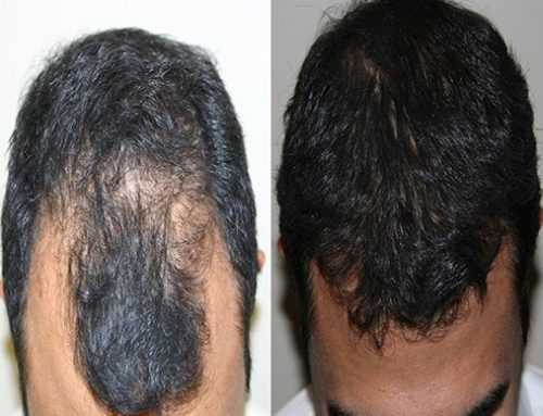 Ways To Protect Your Transplanted Hair In Summer or Holidays