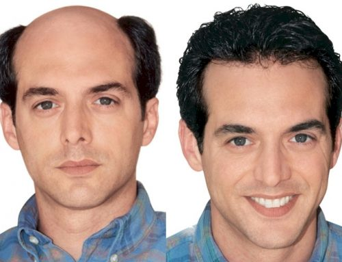 Hair Transplant Surgery – Do You Need It, Do You Want It?