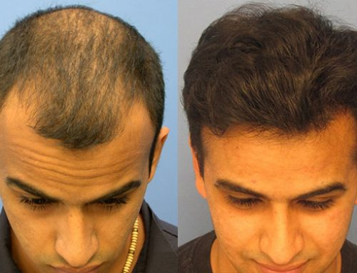 Hair Transplant Donor: How Many Transplanted Hair Grafts Will I Need?